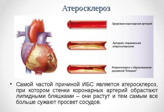Атеросклероз коронарных артерий — причины, факторы риска, симптомы ...